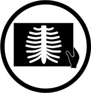 black and white icon of a chiropractor looking at an x-ray of ribs