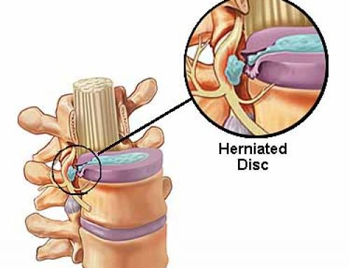 Herniated Disc Management