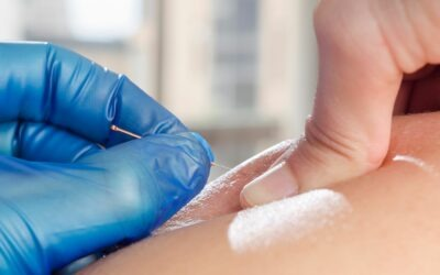 Dry Needling and Physiotherapy